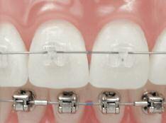 Damon au Cabinet d'orthodontie de Fabrice LIEGEOIS, Annick BRUWIER, Marie LEROUX, Virginie LEVAUX et Anaïs CLERMONT, à Liège
