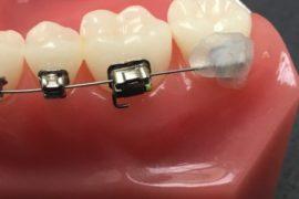Urgence Fil qui gène Cire Orthodontique