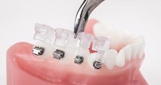 pose boitier au cabinet d'orthodontie de Fabrice LIEGEOIS, Annick BRUWIER, Marie LEROUX, Virginie LEVAUX et Anaïs CLERMONT, à Liège